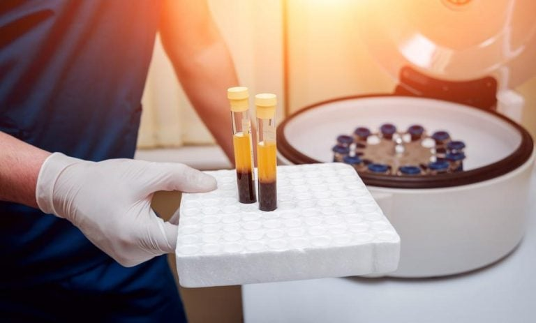 Platelet-Rich Plasma (PRP) Therapy | Musculoskeletal Clinic Singapore | Dr Chiam Tut Fu at Thomson Wellth