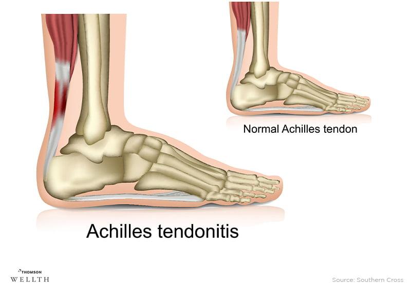 Achilles Tendonitis Sports Injury